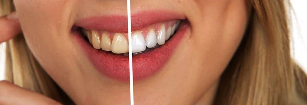 hambapasta Denta Seal kuidas toimib, kommentaare, tootja, kust osta, hind